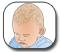 ��� ����� � ������ ����� ����� - Cradle Cap - Seborrheic Dermatitis