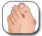 �������� - Gout