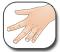 �������� ������� ����������� ������ - Juvenile Rheumatoid Arthritis