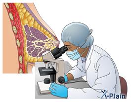 Open+umbilical+hernia+repair+surgery