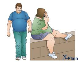 السِّمنة  Obesity