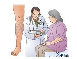 Varicose Veins and Surgery - الدَّوالي overview.jpg